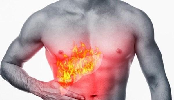 Bạn đã biết cách chữa bệnh nhiệt miệng ?
