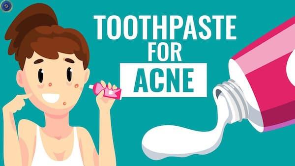 Bí kíp trị mụn bằng kem đánh răng