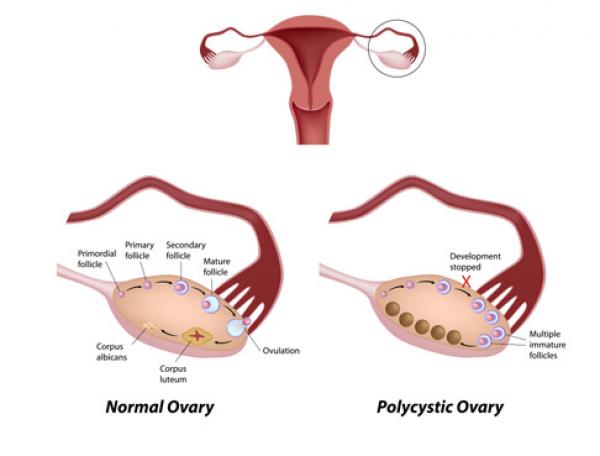 Buồng trứng đa nang và thụ thai