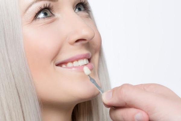 Cách bảo vệ răng tối ưu nhất muốn chia sẻ với các bạn