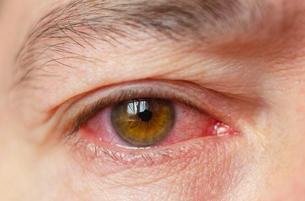 Căn bệnh đau mắt đỏ rất dễ lây lan trong mùa nóng