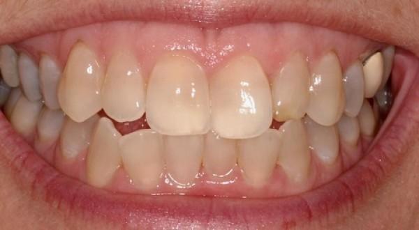 Dentanalgi thuốc trị đau răng với hiệu quả ra sao ?