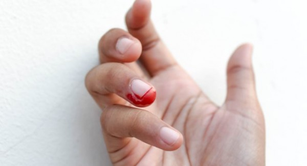 Kinh nghiệm xử lý ngón tay bị thương do tác động bên ngoài