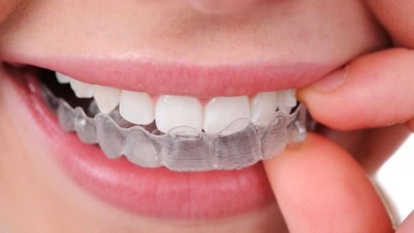 Nguyên liệu làm trắng răng tại nhà