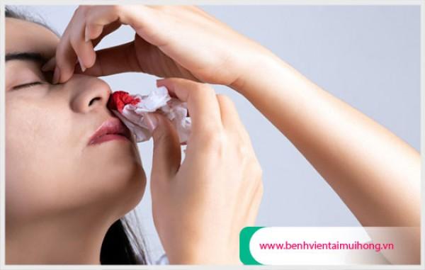 Nguyên nhân do đâu chảy máu mủi vào buổi sáng là gì?