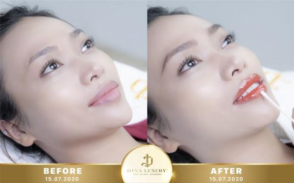 Phun môi collagen màu đẹp tại Diva Luxury