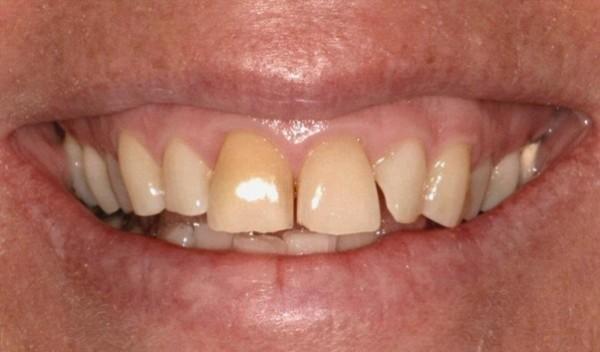 Răng bị vôi là như thế nào ?