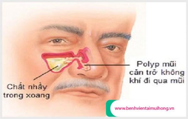 Thông tin Polyp xoang hàm cần phải biết ?
