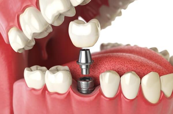 Trồng răng implant tại đà nẵng